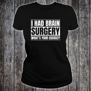 Agile necesita cerebro